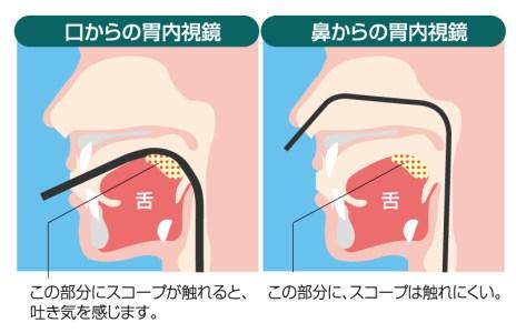 胃カメラ検査の種類